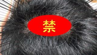 【奇跡】薄毛・AGAが回復傾向に!1週間何をしたのか説明します